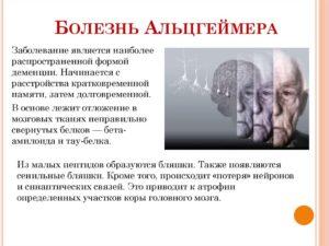 Отличие старческой деменции от болезни альцгеймера