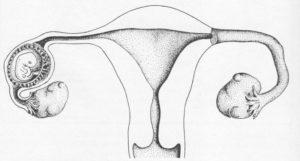 Сколько положено больничного после внематочной беременности