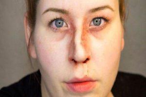Сломанный нос со смещением степень тяжести вреда здоровью