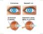 У ребенка осигиатизм и один глаз плохо видит положена ли инвалидность